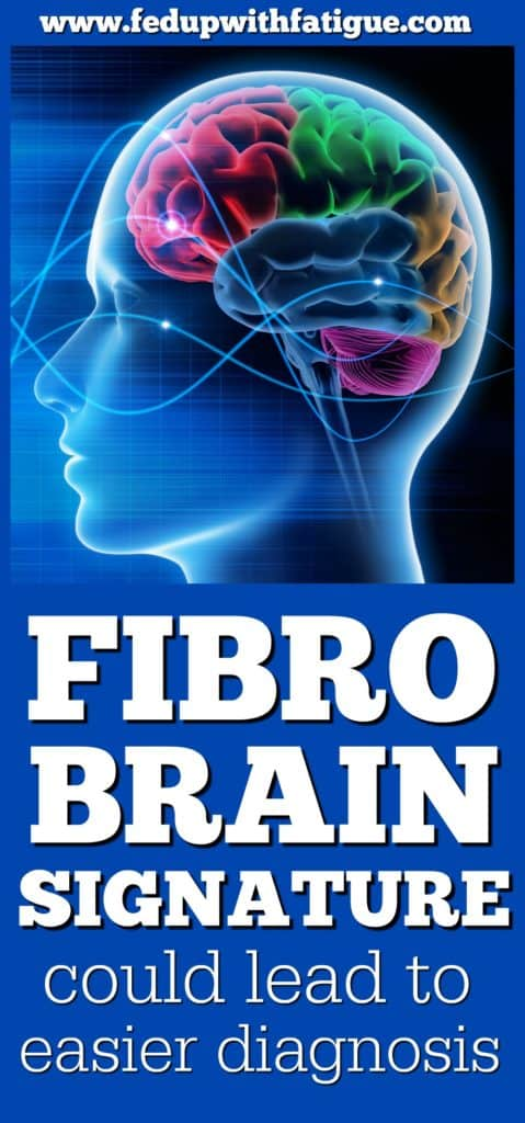 Unique fibromyalgia brain signature could lead to easier diagnosis | University of Colorado Boulder researchers have identified a unique brain signature in fibromyalgia patients. The finding could eventually lead to the development of a diagnostic tool for fibromyalgia.